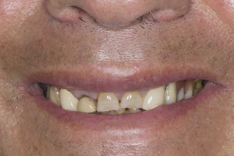 Fracture and wear of the entire dentition due to Bruxism. Treated with dental crowns and crowns on implants