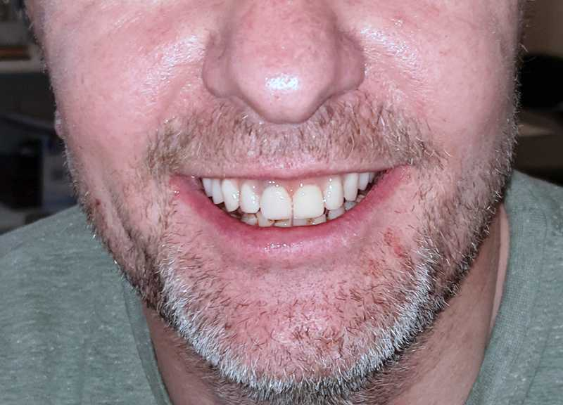 Asymmetries in the dentition and smile, carious lesions, darkened and stained teeth. The patient underwent dental whitening and was treated with dental implants and ceramic crowns.